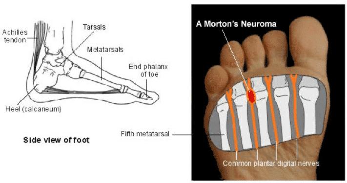 bottom Sudden third pain fourth toe foot