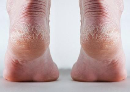Dry cracked heels