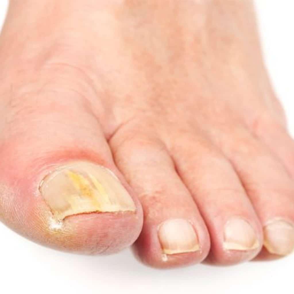Fungal nail treatment options