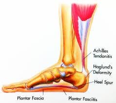 foot diagram of heel