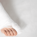 Stress Fractures of the Foot: Causes, Symptoms, Treatment and Prevention